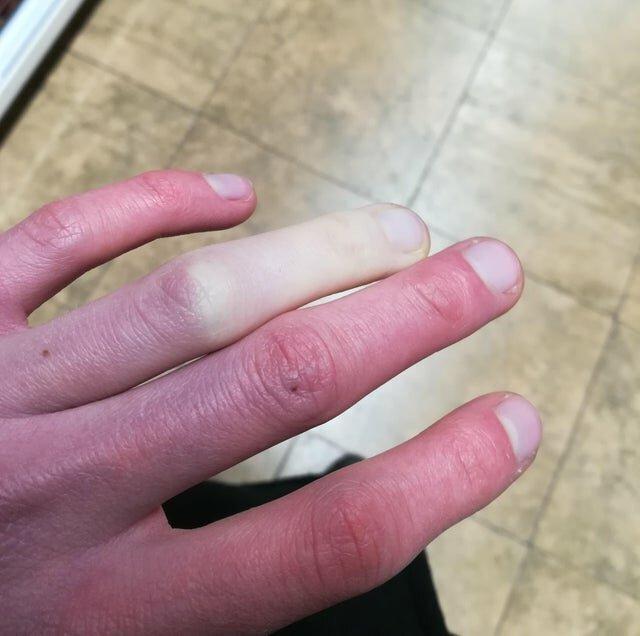 отморозил палец