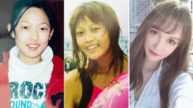Ву Сяочэн до и после операций