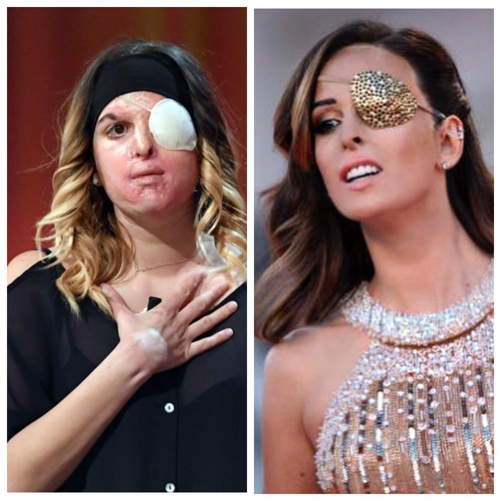 Джессика Нотаро до и после