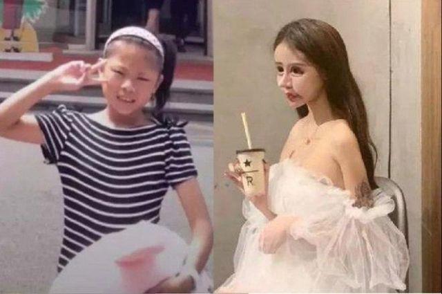 Little Z Nana до и после операций