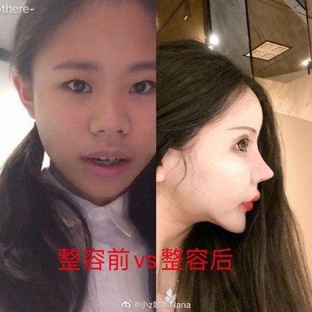 Little Z Nana до и после пластических операций