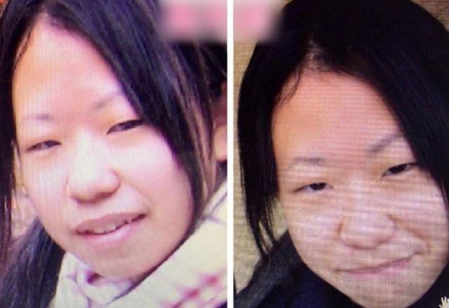 Микиши до и после операций