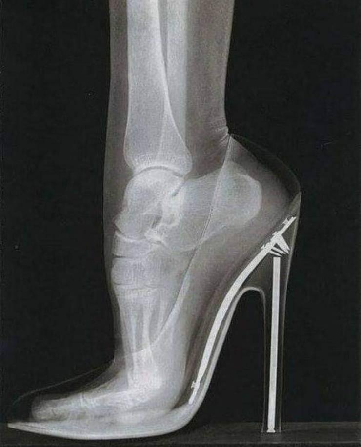 Рентген туфельки