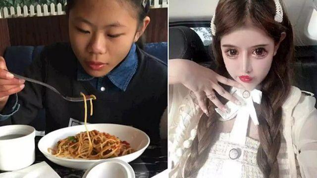 Чжоу Чуна до и после операций