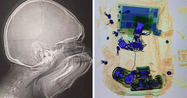Мир на рентгеновском снимке