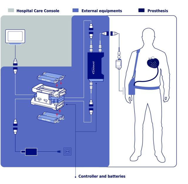 хирурги имплантируют искусственное сердце